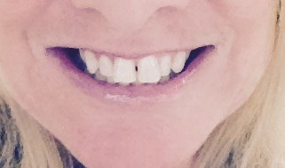 Share your smile today. Here's mine.